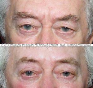 microcurrent-eyes